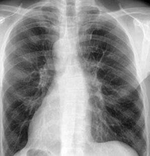 Keuhkokuume Oireet